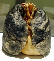 Takto vydají plíce kuřáka