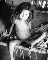 Výstava Smrt pravých neštovic